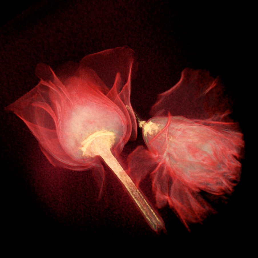 Rose and Carnation CT scan